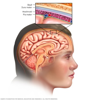 BrainProtection